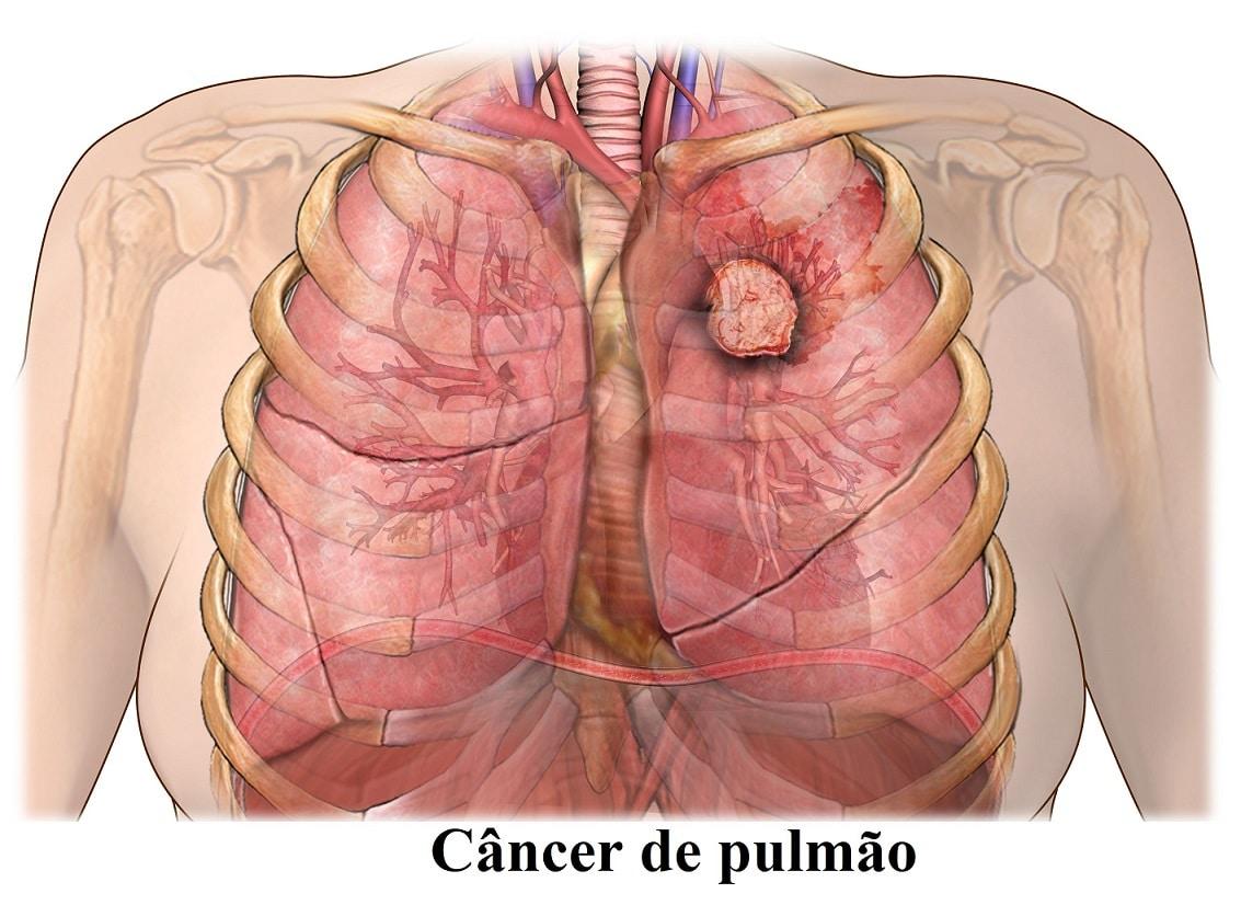 cancer de colon metastasis pulmonar cancer genetic engineering