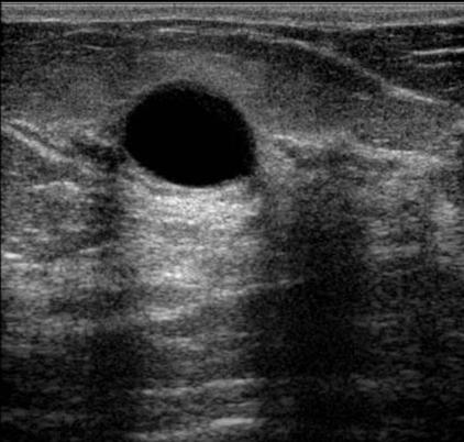 Papilloma intraduttale medicitalia - Papilloma intraduttale seno sintomi