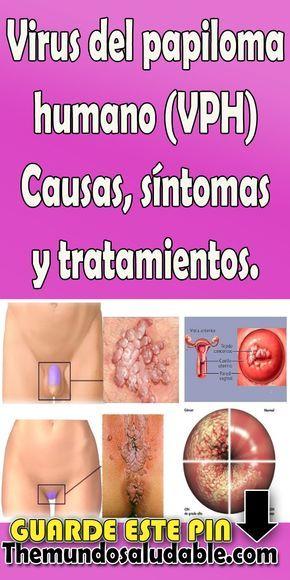 papiloma humano tratamiento y sintomas papillomavirus virus trae 45