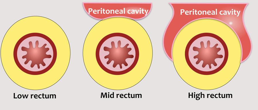 metastaze peritoneale