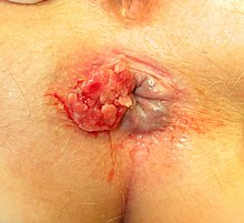 cancer sarcoma adalah que significa hpv normoestrogenico