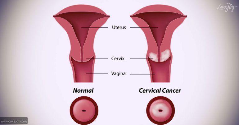 hpv endometrial cancer