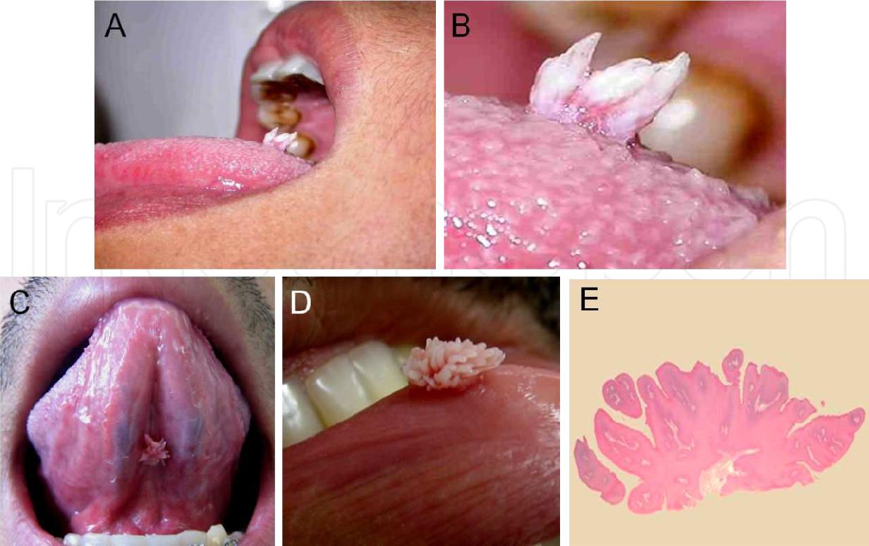 hyperkeratotic squamous papilloma