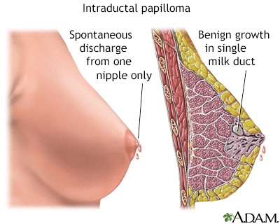 papilloma of the breast surgery