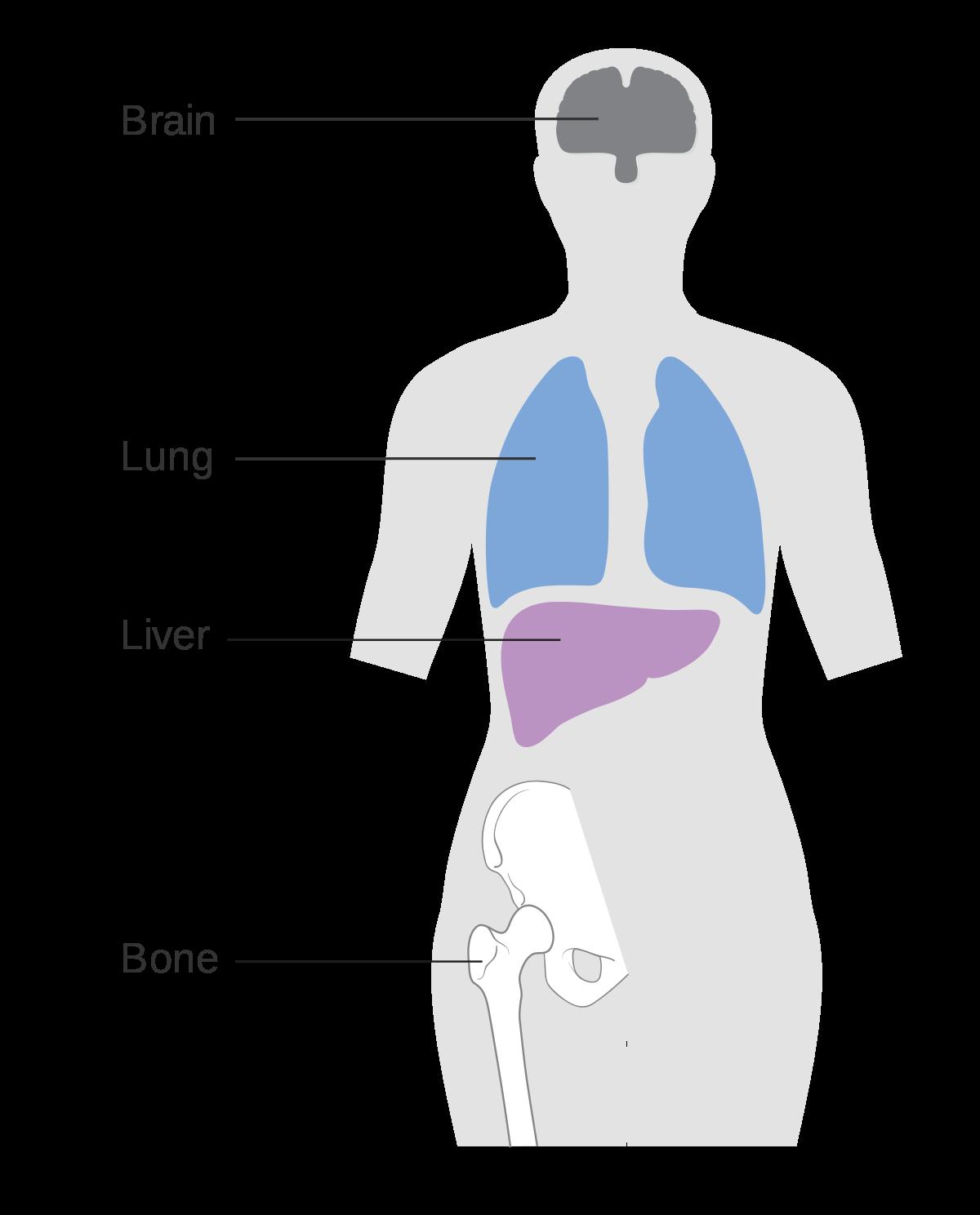 hpv becomes cervical cancer intervento papilloma nasale