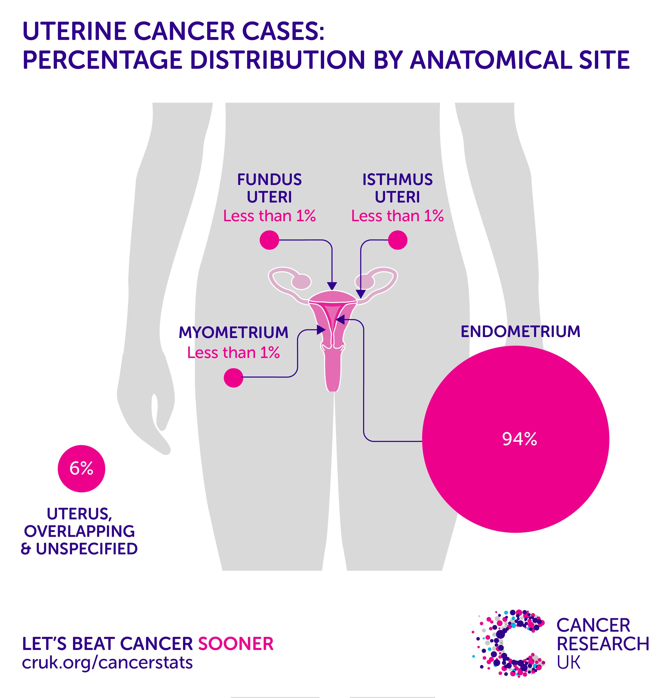 endometrial cancer causes risk factors