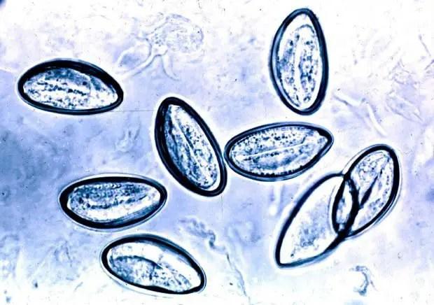 enterobiasis diagnostic test bacterii exudat faringian