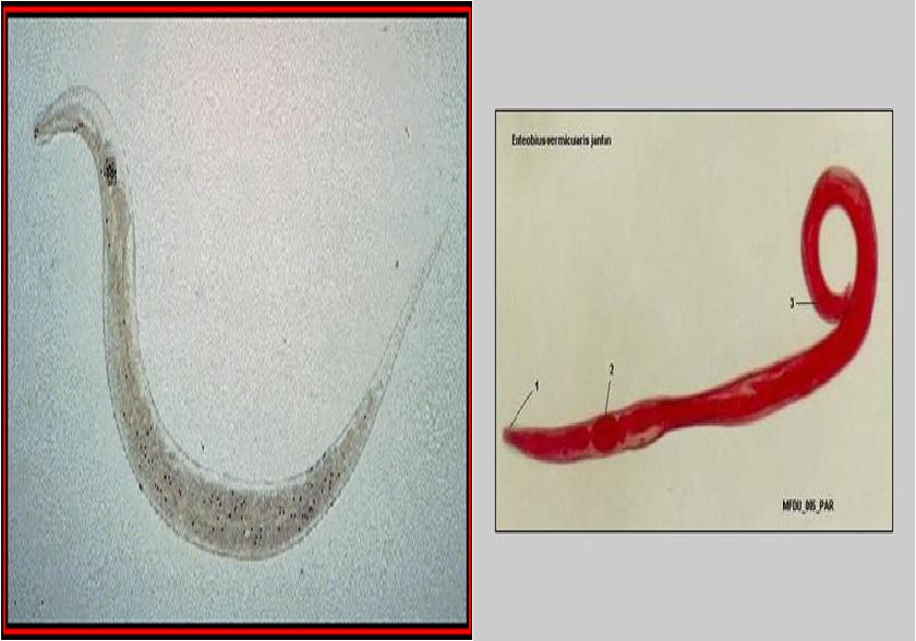 enterobius vermicularis klinik