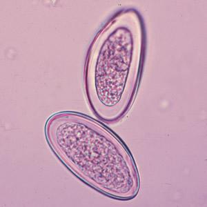 enterobius vermicularis nome da doenca