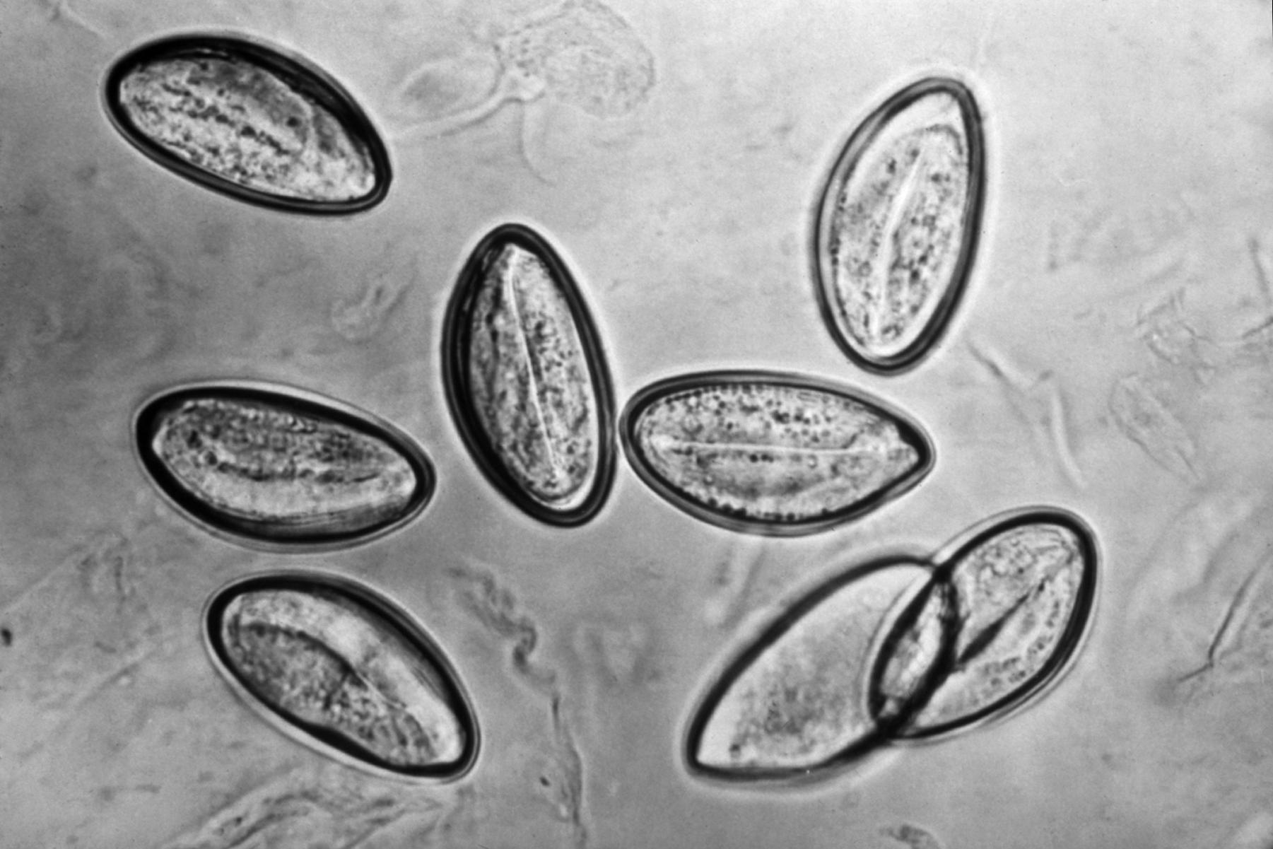 enterobius vermicularis zoonosis
