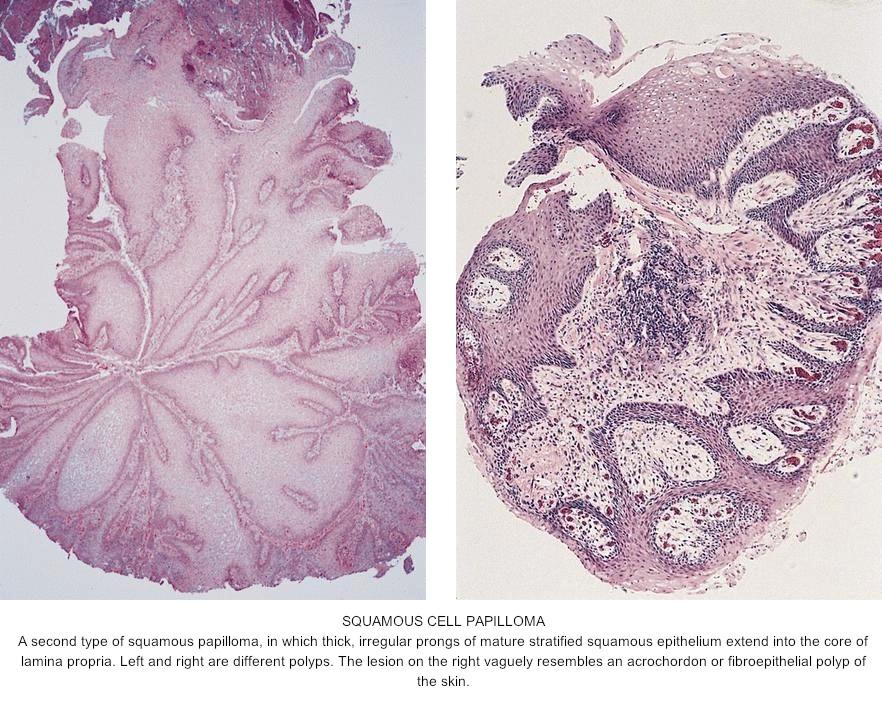 define fibroepithelial papilloma