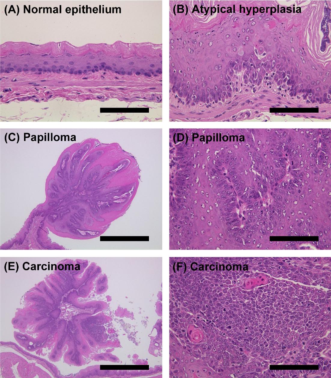 schistosomiasis vietnam papiloma ginecologia