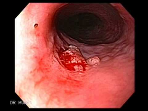 esophagus papillomatosis