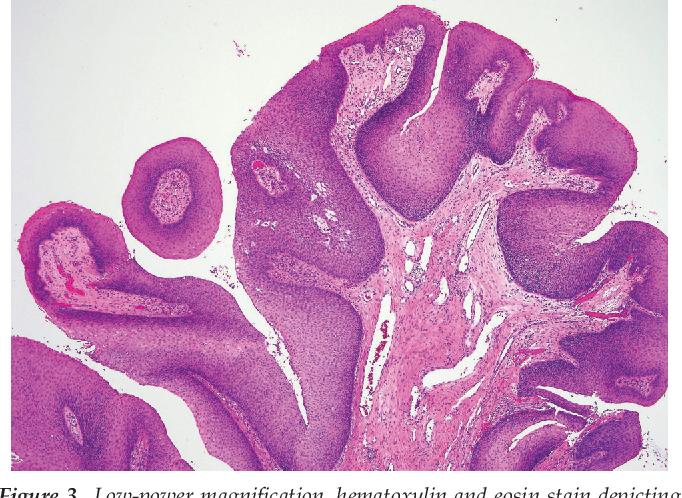 exophytic papillomas