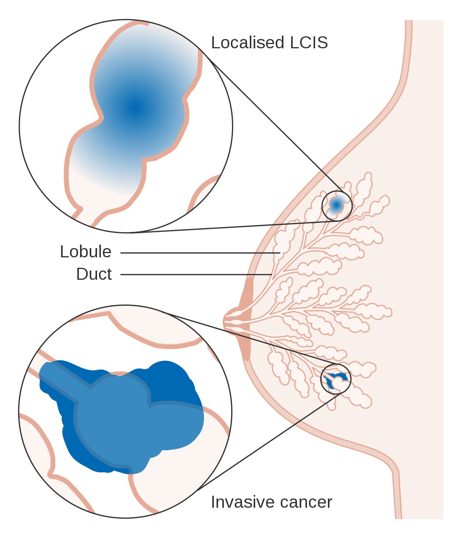 intraductal papilloma breast icd 10 de que se alimenta el oxiuros