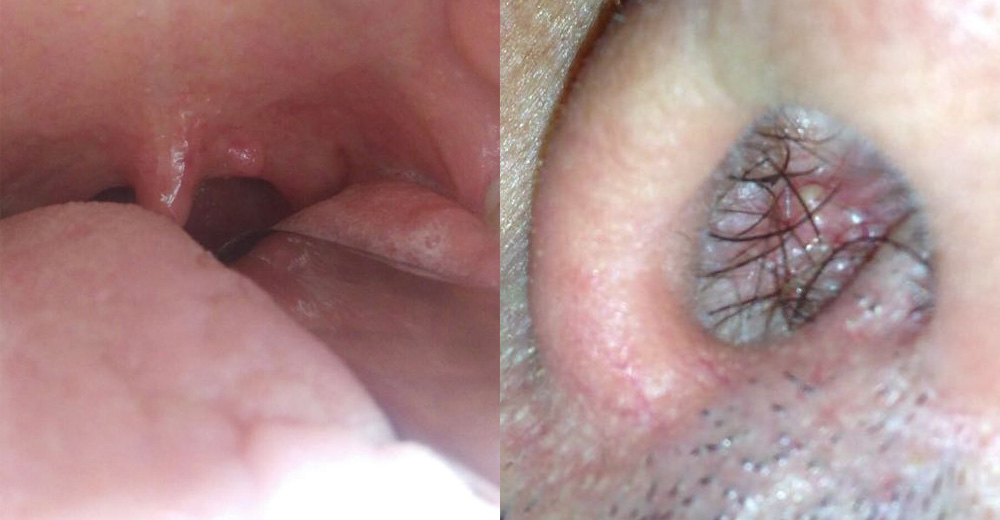 papilloma virus maligno squamous papilloma urethra