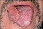virus papiloma humano prueba hombres how do you get human papillomavirus cancer