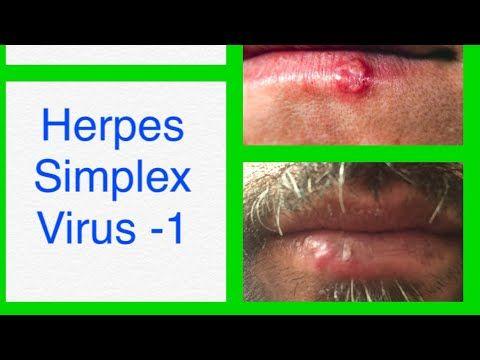 papilloma virus nelluomo bocca cancer limfatic in ultima faza