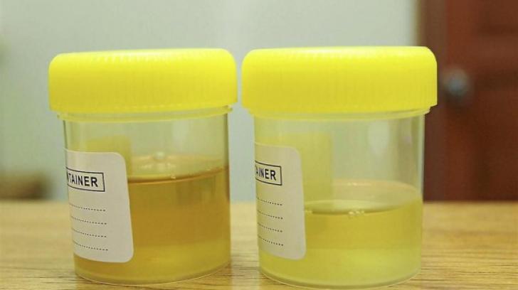 cancer urina portocalie hpv impfung erwachsene kosten