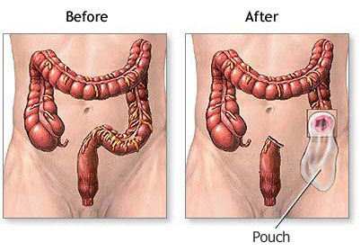 hpv cancer genital warts intraductal papilloma immunohistochemistry
