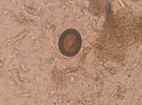 enterobius vermicularis qurdu hpv impfung vor und nachteile