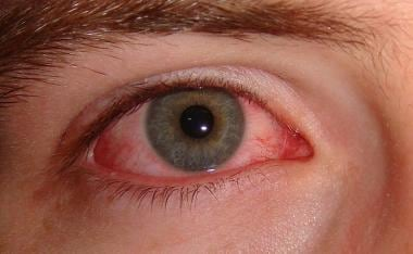 hpv virus eye problems