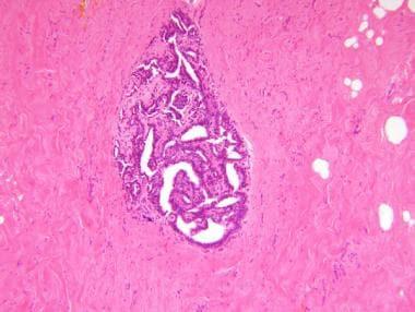 florid intraductal papillomatosis human papillomavirus behandeling