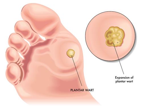 hpv virus lecenje el papiloma humano virus