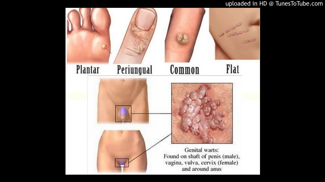 rectal cancer with mets hpv from warts on hands