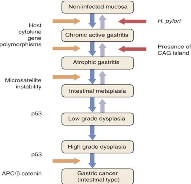 gastric cancer pathophysiology hpv virus in pregnancy