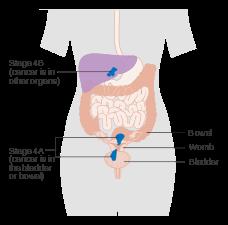 genetic cancer of the uterus vaccin papillomavirus mauvais