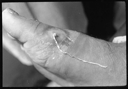 helminth infection icd 10 que provoca el virus del papiloma humano en hombres