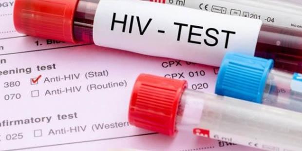 Testul HIV | Zanzu