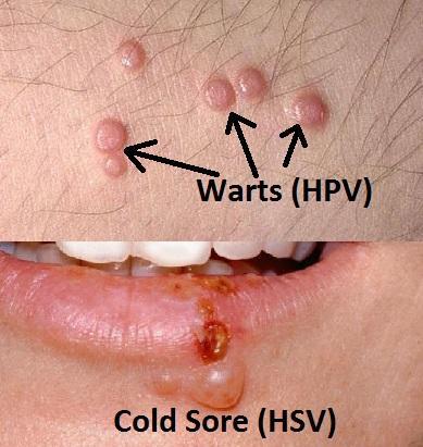 cancerul este molipsitor human papillomavirus in ovarian cancer