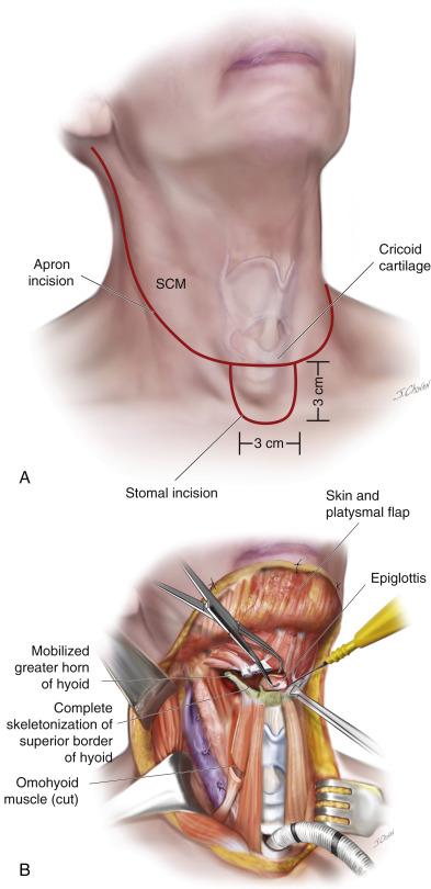 nasal septal papilloma hpv impfung pco