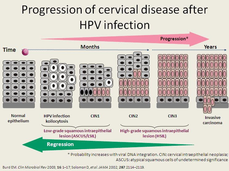 hpv cancer development