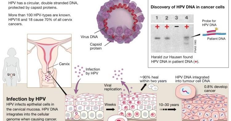 hpv causes cervical cancer simptome paraziti la catei