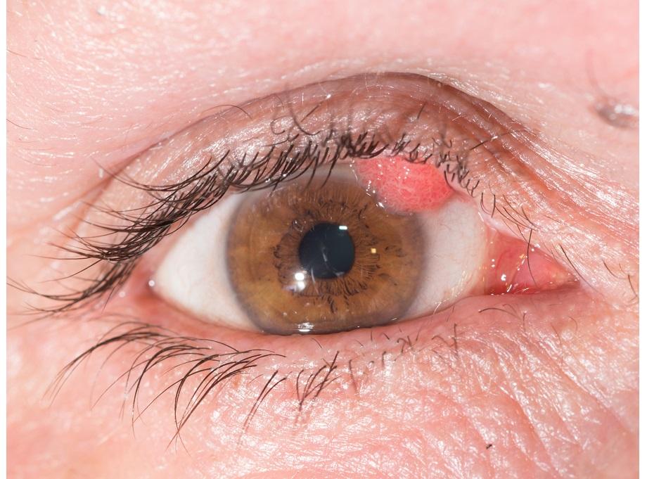 hpv eyelid treatment metastatic cancer news