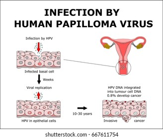 hpv is a dna virus hpv warze frau