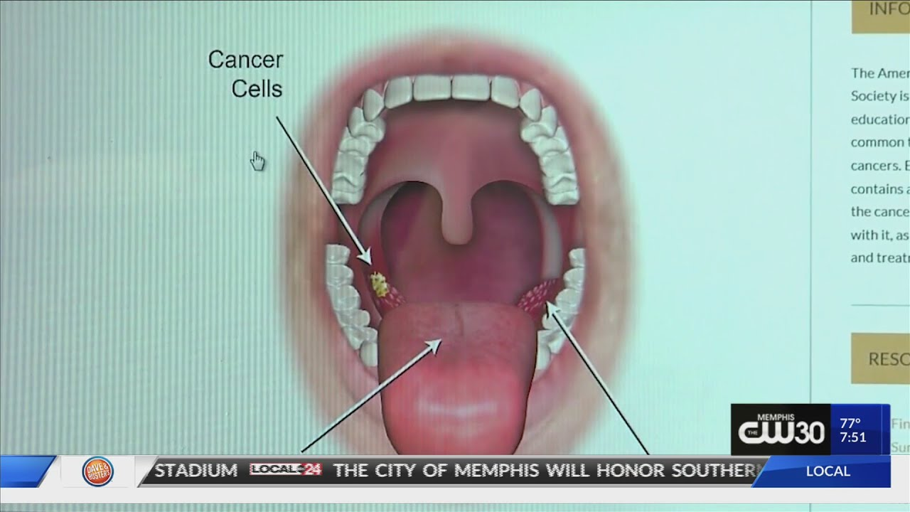 hpv on throat cancer dor abdominal