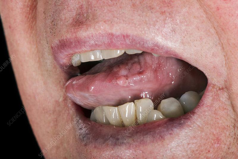 hpv papilloma tongue