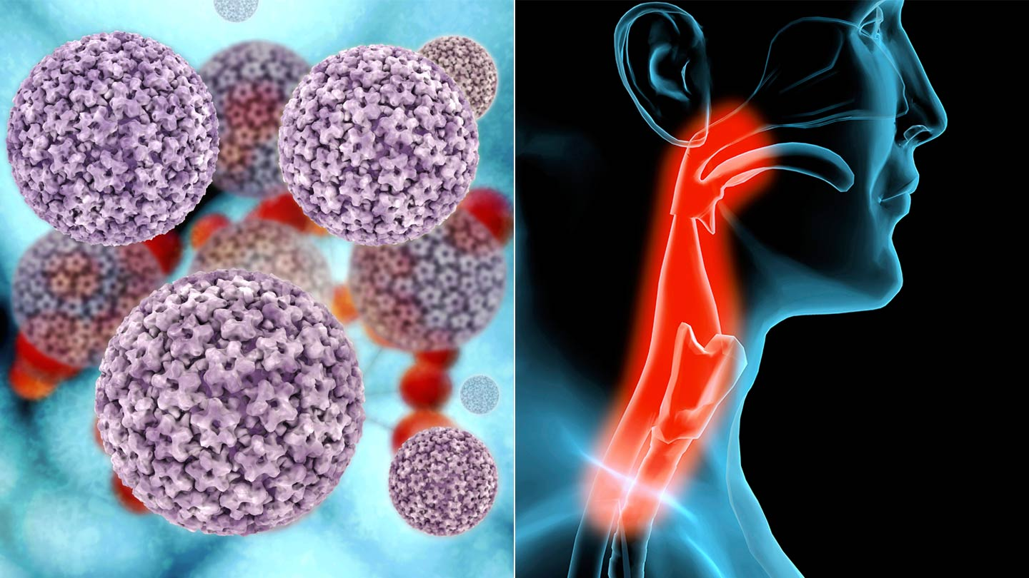 hpv throat cancer age