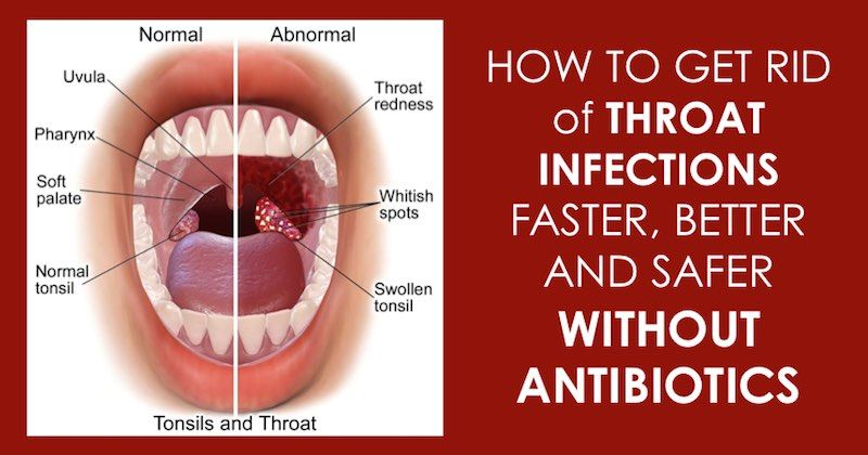 hpv throat infection treatment