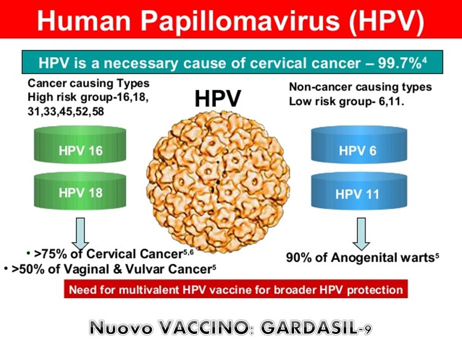 cancer tipo hodgkin