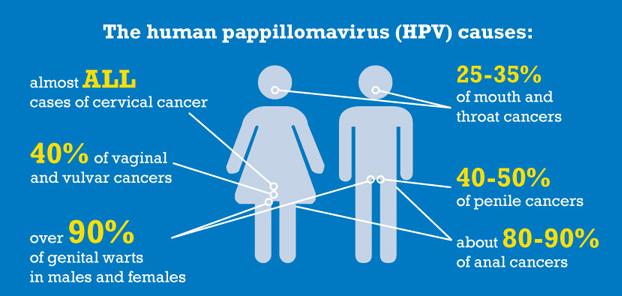 cancerul pulmonar stadiul 4 hpv impfung jungen nutzen