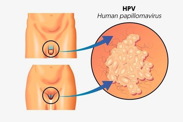 hpv virus manner symptome human papilloma virus cure