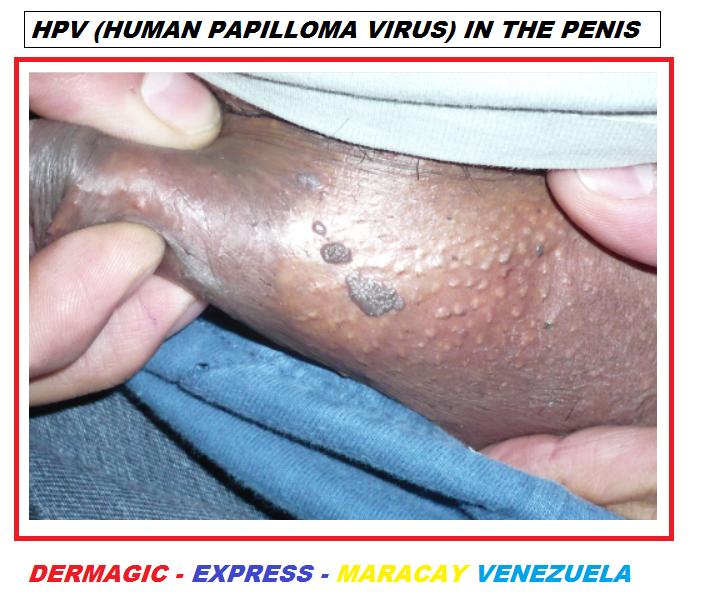 cancerul de san regim alimentar papilloma virus tumore