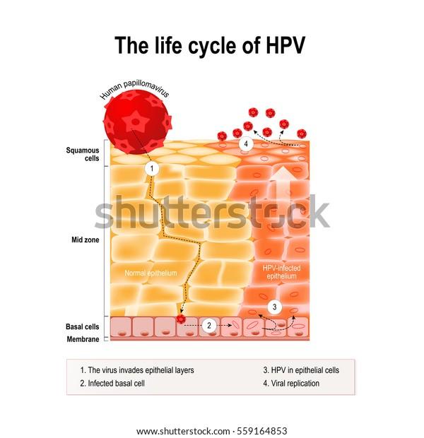 hpv virus zeny cancer de colon que organos afecta