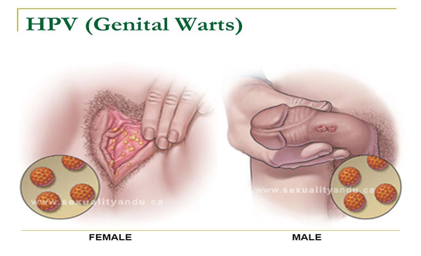 hpv warts cancerous