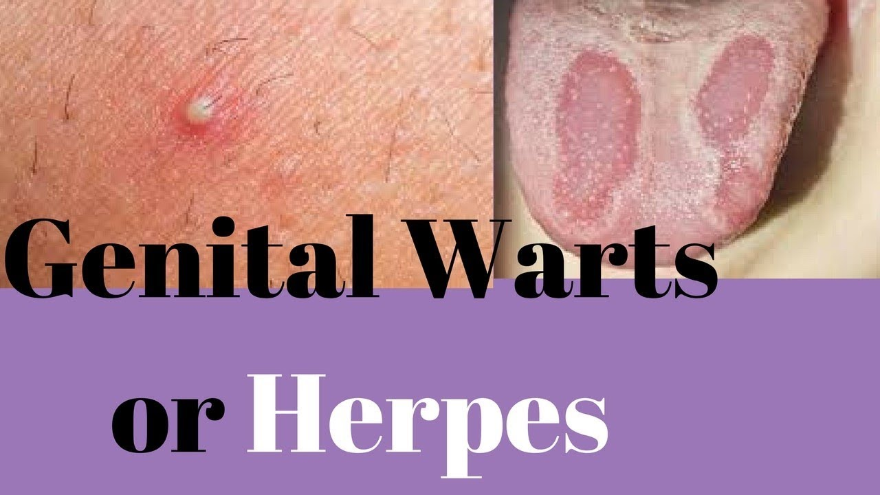 hpv warts herpes